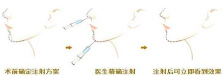 上海整形做丰下巴手术大概多少钱
