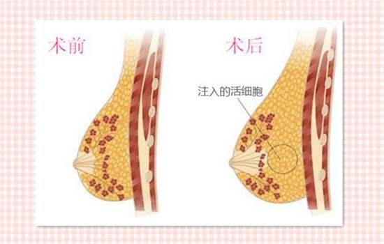上海整形做脂肪丰胸结节很大怎么去除