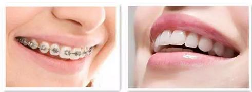 上海美莱20岁矫正牙齿晚不晚