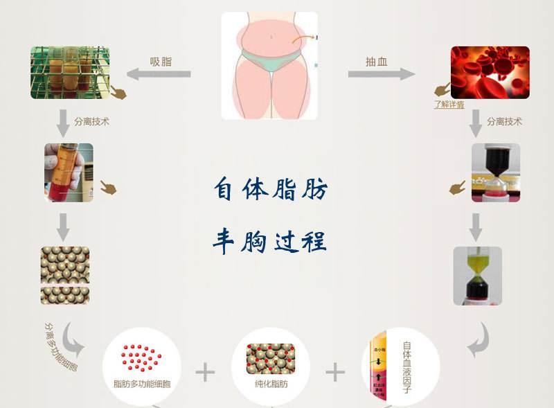 上海做隆胸老了以后怎么办
