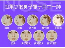 上海做了假体隆鼻一般是多少钱