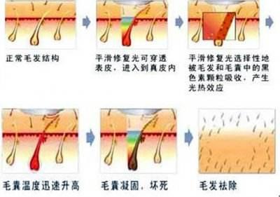 【上海美莱脱毛】激光脱毛能坚持几年