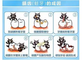 上海口腔医院牙齿有个洞补牙多少钱