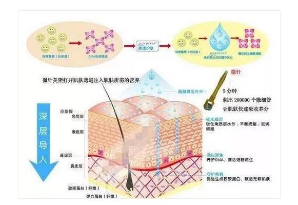 上海整容医院做完微针几天不能见人