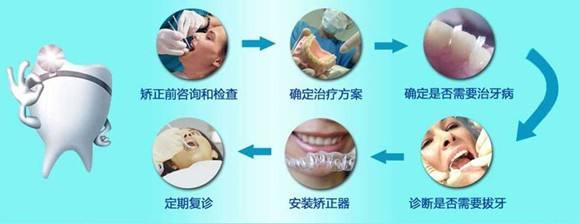 上海矫正牙齿好不好