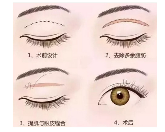 上海割双眼皮做哪种好