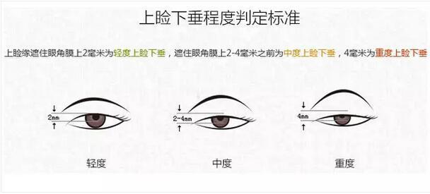 【吴海龙】上海上睑下垂矫正哪种好