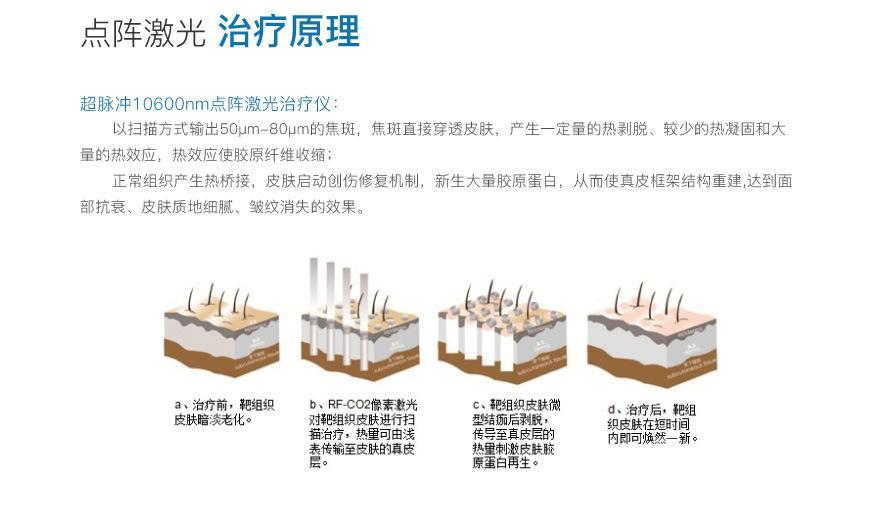 上海点阵激光效果好吗