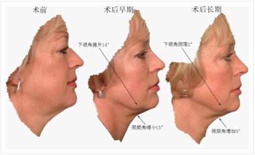 上海做面部拉皮除皱手术效果可靠吗