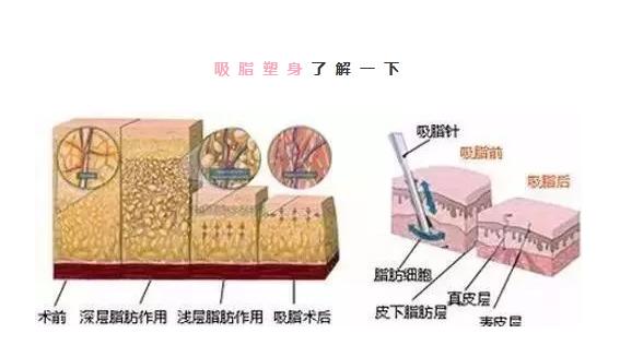 上海吸脂医院做腰部吸脂维持时间是多久