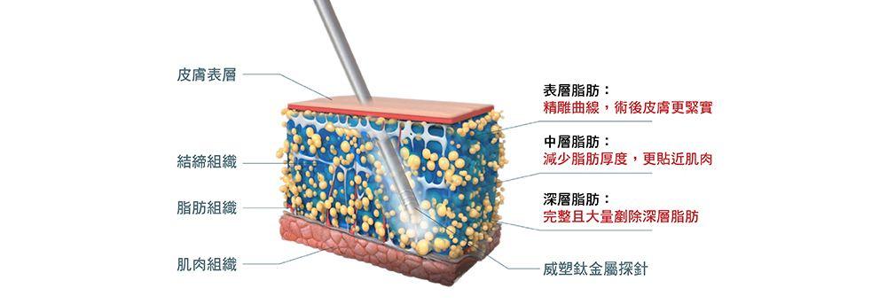上海做抽脂肪减肥对身体有伤害吗,效果好吗