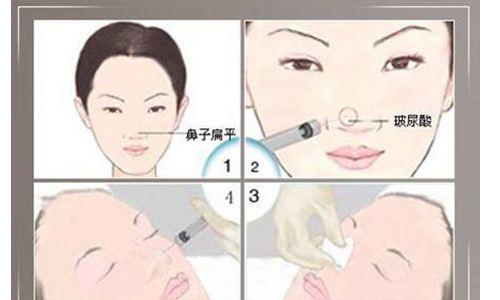 上海注射隆鼻价位一般在多少钱