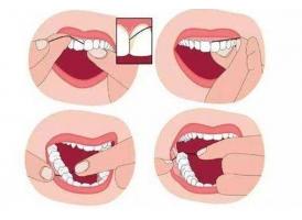 【上海美莱周茹】牙齿出现严重松动怎么办