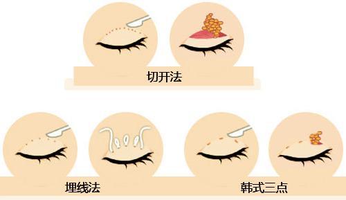 上海做了眼睑抽脂多少钱