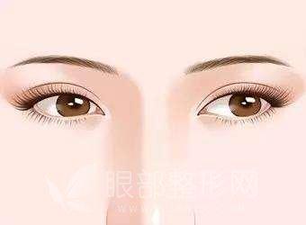 为什么同样双眼皮手术,不同医生会有不同区别