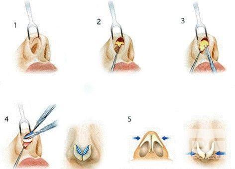 上海做假体隆鼻和综合隆鼻的区别在哪