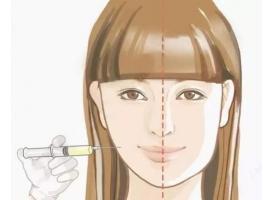 美莱注射瘦脸注射几次,注射后容易反弹吗