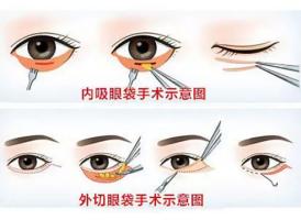 上海做去眼袋手术有什么优势
