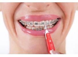 上海口腔医院戴牙套一定要拔牙吗