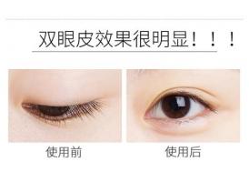 上海美莱整形美容医院双眼皮手术成功吗