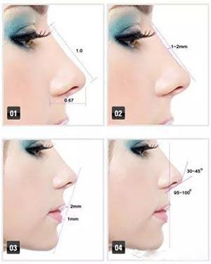 肋软骨鼻综合是什么