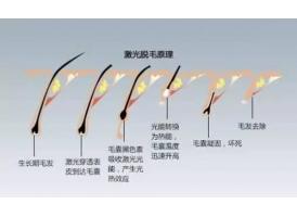 现在在上海脱毛美容医院做激光脱毛多少钱