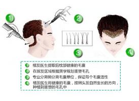 种植头发一般要多少钱在上海