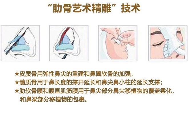 肋软骨隆鼻能维持终身吗 美莱注意事项记牢