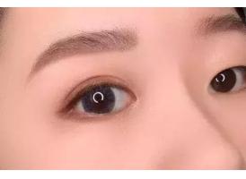 【上海吴海龙眼部科普】割完双眼皮会留疤吗