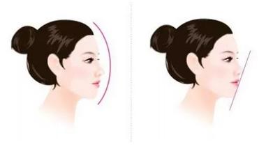 做鼻子大概合理价位上海多少