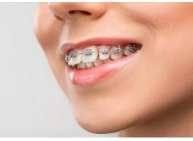 整牙口腔牙齿矫正|美莱改变您就是如此神奇