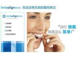 上海做隐形矫正多少钱,隐适美价位大解析