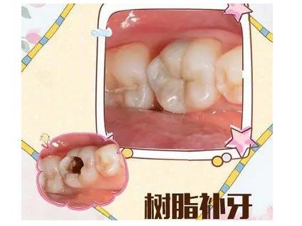 上海修四颗牙多少钱 不吃亏赶紧看看这个