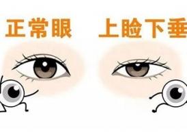 上海眼睑下垂手术费用多少钱 价格效果两者兼得