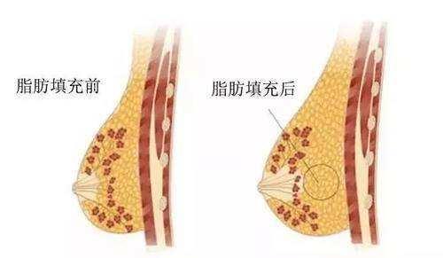 上海自体脂肪移植隆胸一般多少钱