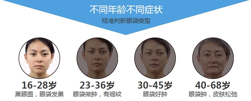 上海哪家医院祛眼袋质量好哦,保质保量!
