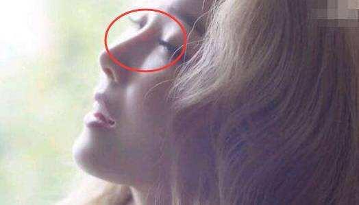美莱隆鼻修复|鼻子最早可以什么时候修复