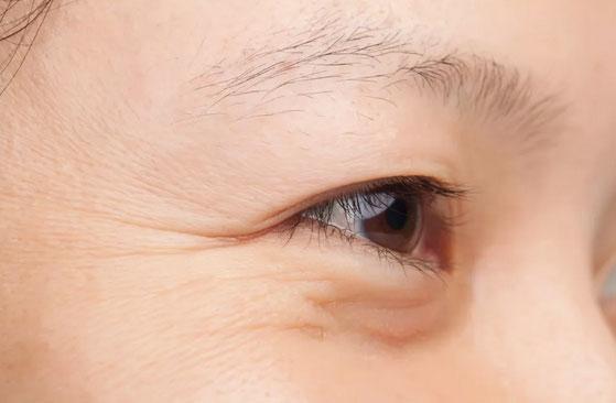 鱼尾纹和眼角纹区别,美莱让您了解