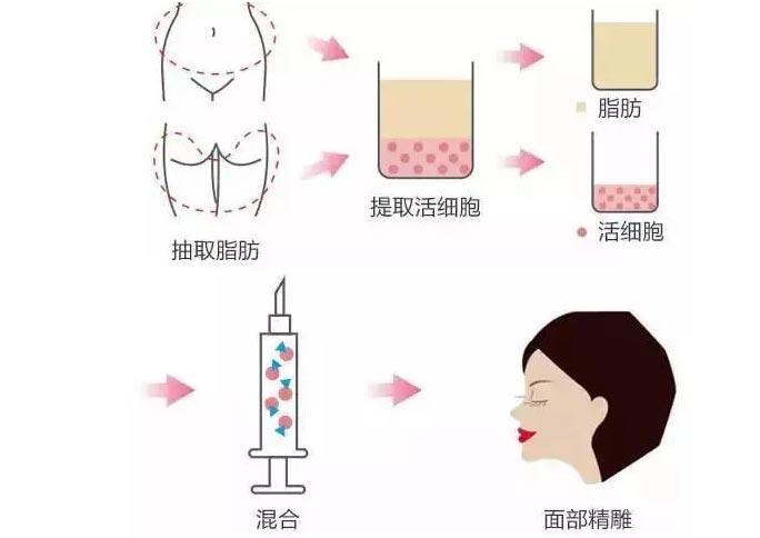 脂肪填充越填越显老?那一定是这些原因所导致!