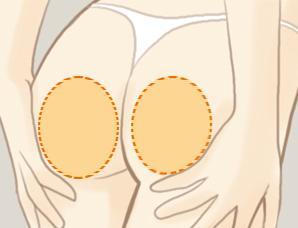 臀部抽脂手术费用多少  美臀养成记