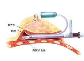 上海隆胸存在几种方法 合适,必要,愉快即为更好!