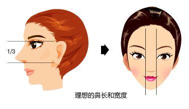 【美莱王琳】做隆鼻手术用哪种软骨比较好
