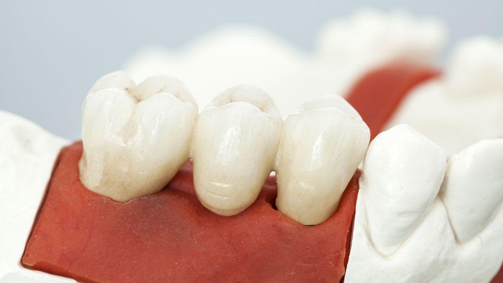 上海牙齿美白维持多久,满心笑容自信起来