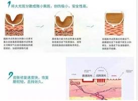 上海祛疤注意事项是哪些,恢复期别中招!