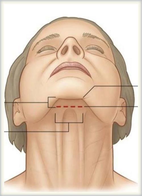 上海面颈部吸脂恢复时间多久,天鹅颈值得拥有