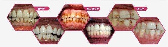 洗牙后能吃甜食吗,再不注意这几点牙齿竟然烂完啦