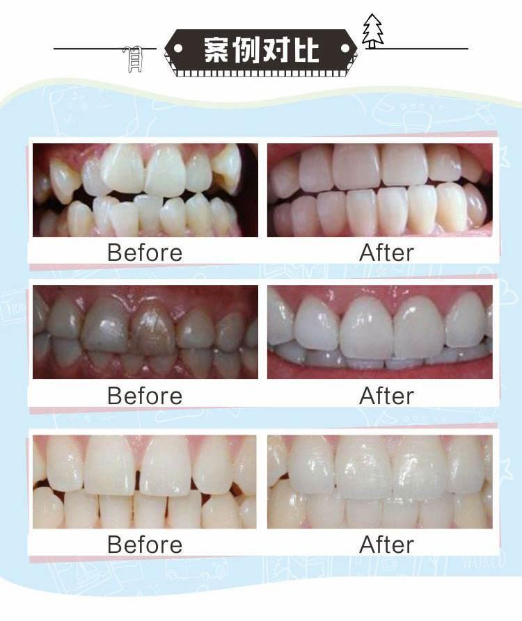 美容冠一颗牙多少钱,别忽略材料可谓关乎价格