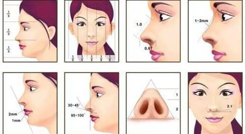 上海鼻综合 美鼻设计结构半肋鼻