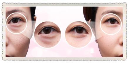 冰敷眼睛可以消除黑眼圈吗