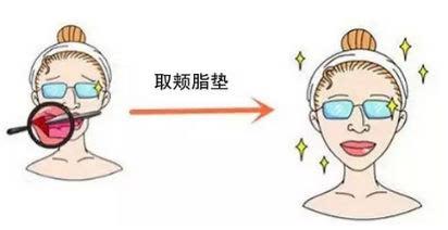 上海去除颊脂垫真的能瘦脸吗